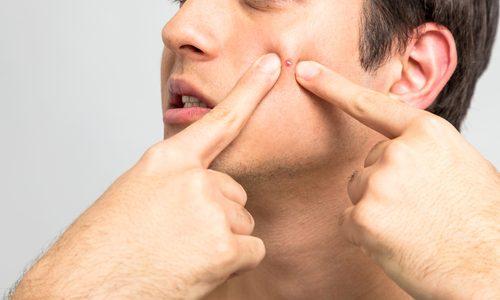 【髭剃りでニキビができる5つの原因と対策】ニキビができにくくなる秘訣を徹底解説