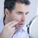 肌荒れしやすいメンズ必見の原因と対策!赤みや炎症、ニキビを治すアイテム7選を大公開
