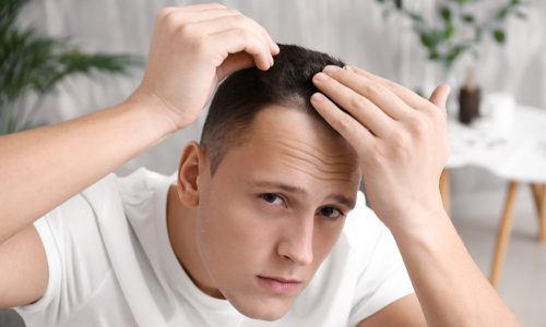 【最短でフサフサ】髪の毛を増やす方法10選|自宅でできる薄毛改善の全情報まとめ