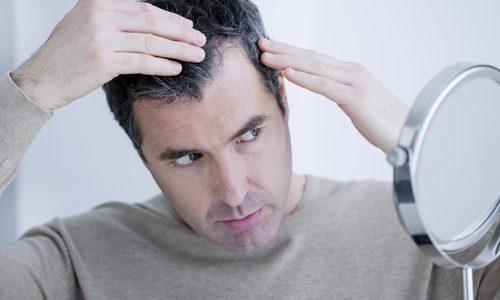 AGAの原因と対策|薄毛改善のために今すぐできることを徹底解説